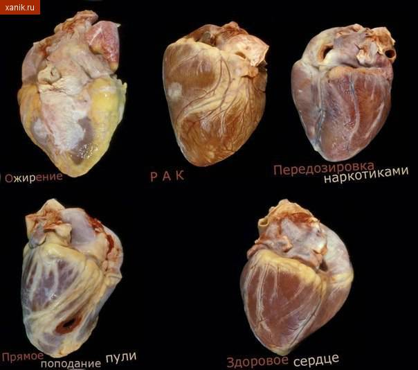 Выбери свое сердце. Фотография сердец. Ожирение, Рак, Передозировка, пуля